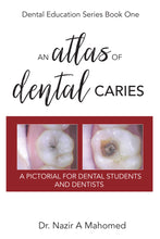 An Atlas of Dental Caries