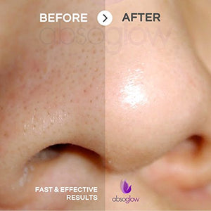 Aura Microdermabrasion - ABSOGLOW