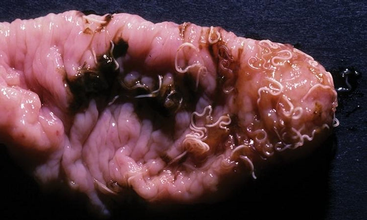 Parasite Cleansing For Humans & Pets - Watch Pictures, Photos