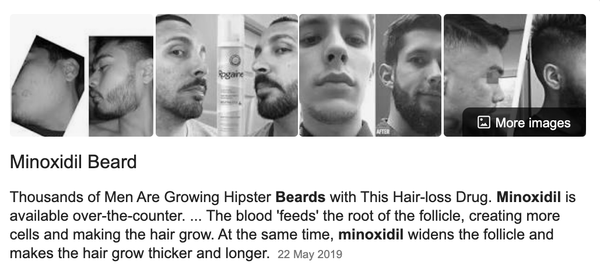 A Rapid Read on Growing More Facial Hair & Minoxidil beards