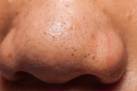Blackheads on Your Nose