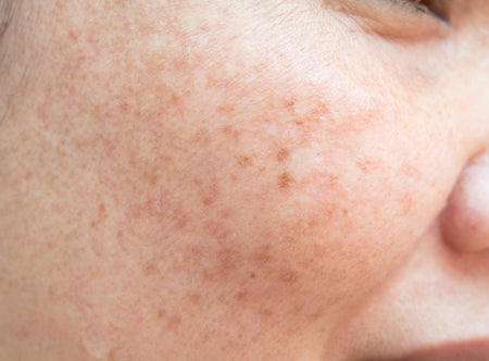 Acne Information Center – Face Reality Skincare