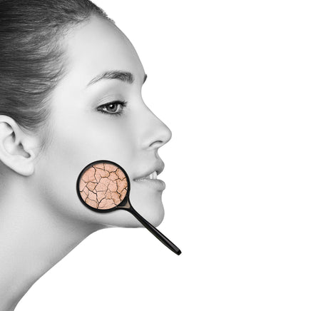 Five Ways to Relieve Dryness from Acne Products