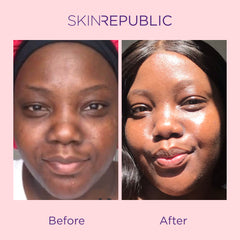 SKIN REPUBLIC COLLAGEN INFUSION FACE MASK CHALLENGE - BEFORE & AFTER