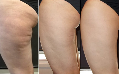 cellulite cream before after