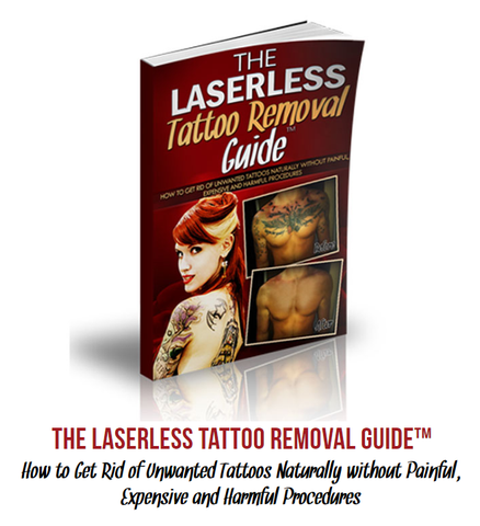 Tattoo Removal | Touchy Style Outfit Accessories