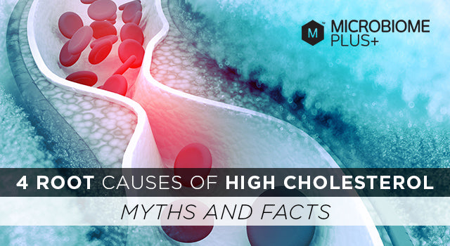 4 Root Causes of High Cholesterol (Myths and Facts)