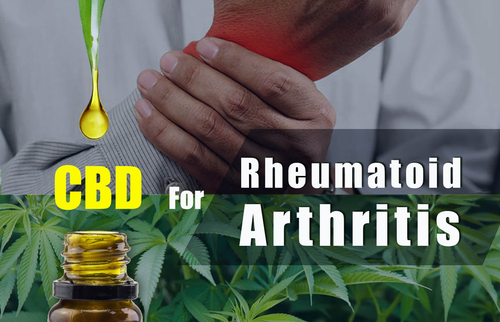 How CBD Can Help Improve Arthritis