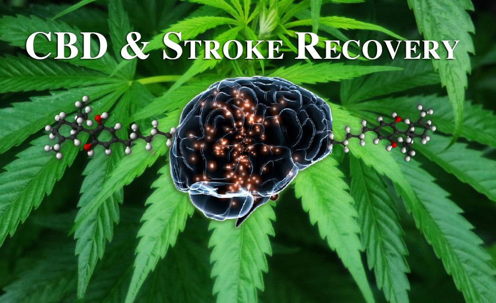 How CBD Can Help Stroke Recovery