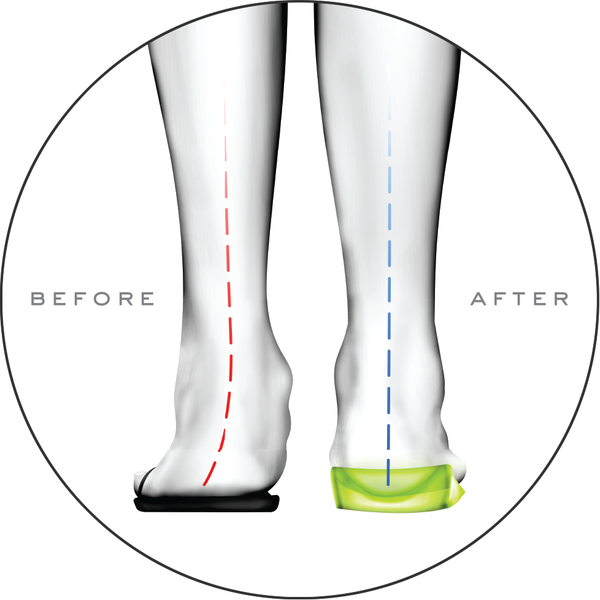 What are Orthotic Insoles and why should you use them?