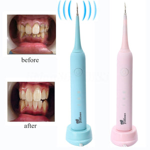 Electric Teeth Calculus and Stain Removal for Home