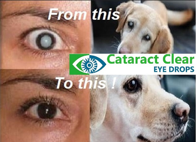 Cataract Clear - Superb, effective, proven, unique, holistic cataract treating eye drops for people and pets!