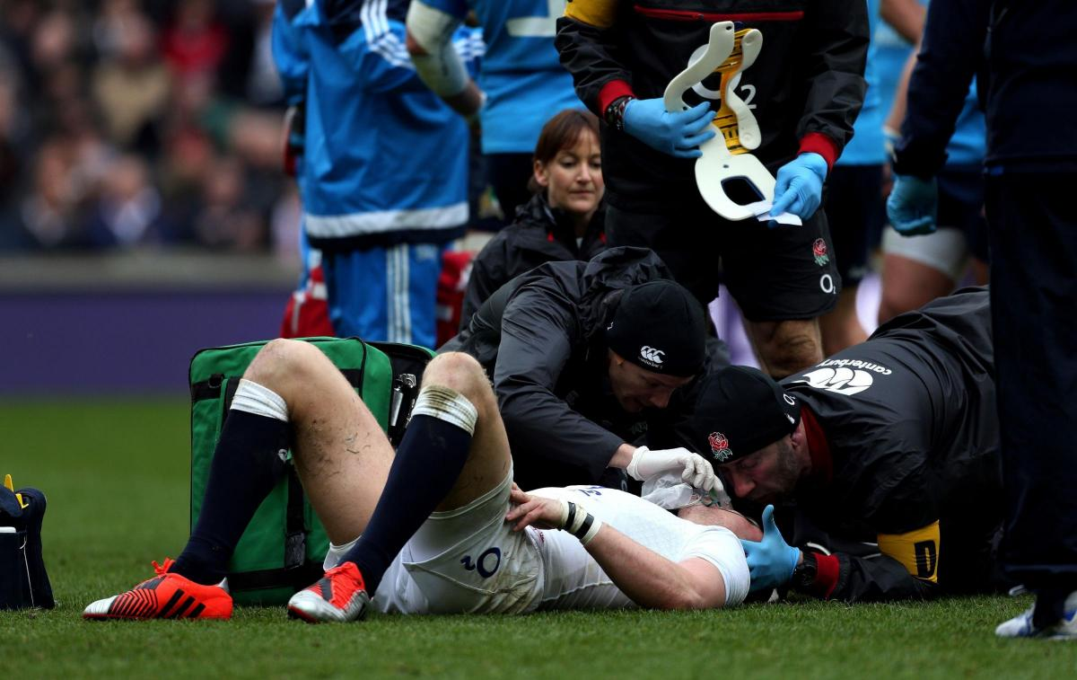How bad really is the problem of concussion in Rugby?