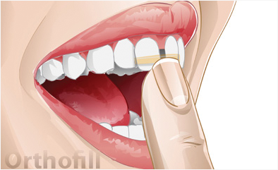 Place the Orthofill Band on Your Teeth