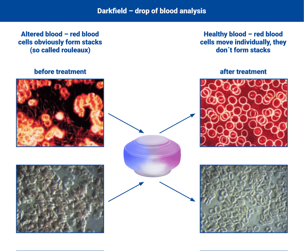 Blood cells before and after structured water