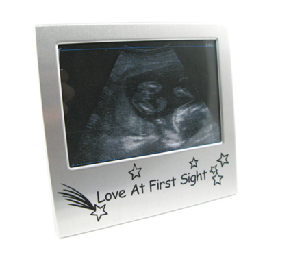 Love at First Sight Ultrasound Picture Frame | Rubies, Chatham