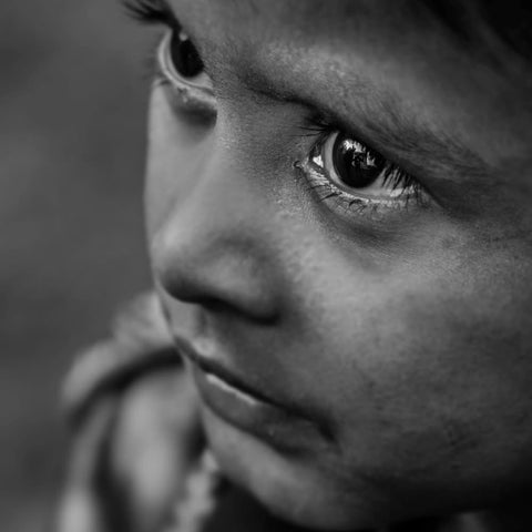 a child suffering for poor nutrition