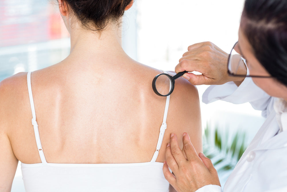 10 SIGNS OF SKIN CANCER AND HOW TO DEAL WITH IT - POSITIVE