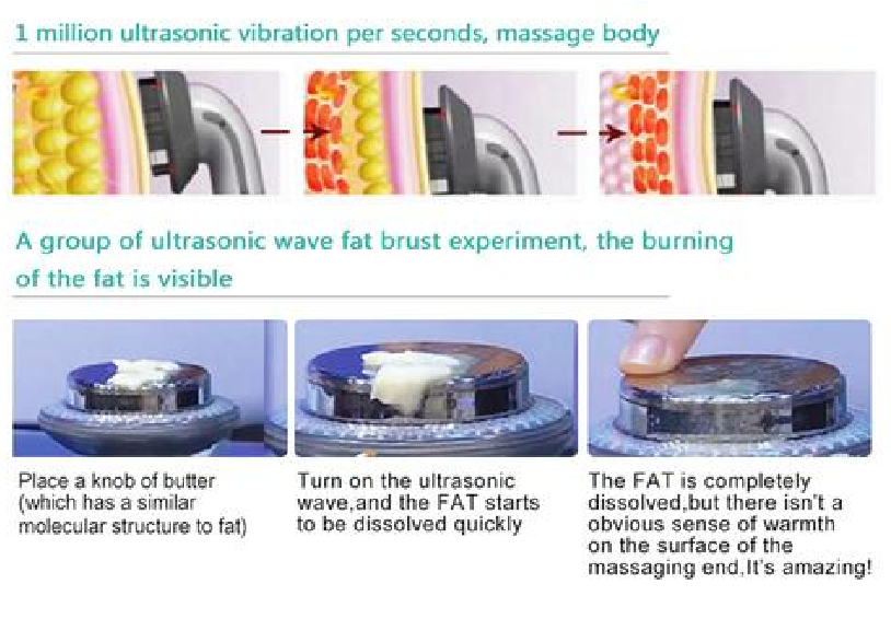 Ultrasonic Cavitation Machine - Cavitation Slimming Device