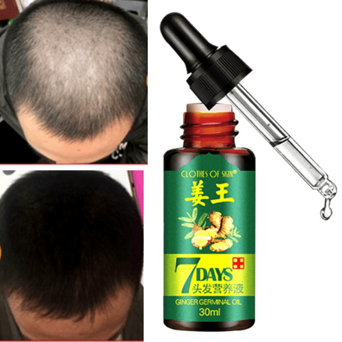 #1 Hair Regrowth Oil - Hair Regrowth Solution - All Natural