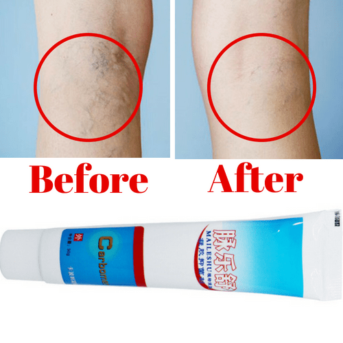 #1 Varicose Veins Treatment Cream - The Most Effective Varicose Veins Treatment