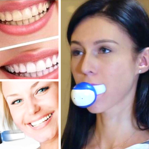 Auto Sonic Electric Toothbrush - Brushes Your Teeth Automatically