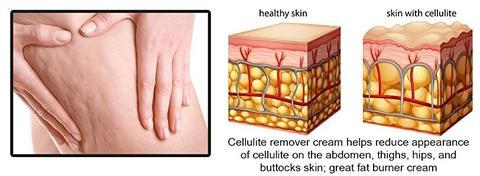 #1 Cellulite Treatment Cream - Cellulite Removal Cream