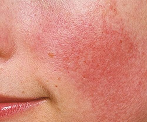 Rosacea Symptoms and Steps to Treat and Prevent