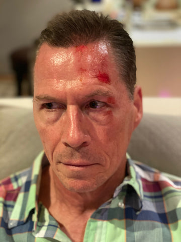 Large wound on the left side of mans face
