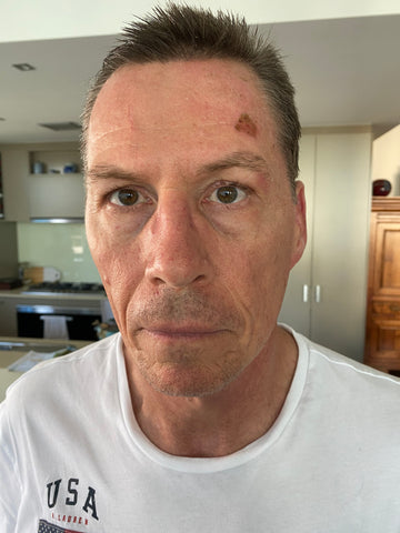 Day 4: Wound has significantly healed on mans face, due to consistent use of LED light therapy. Only a small scab remains above his left eyebrow.