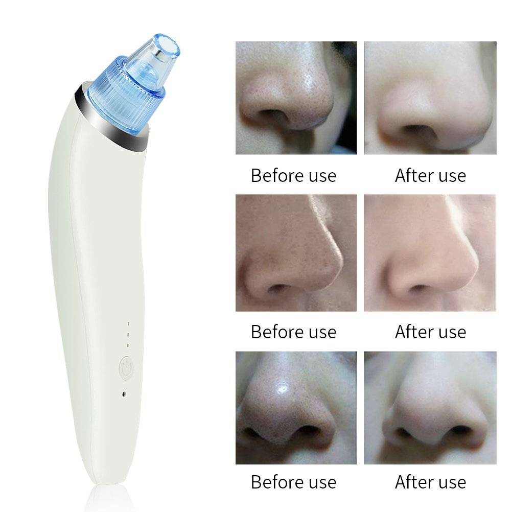 Blackhead Remover, USB Rechargeable Blackhead Vacuum Suction Remover - Get Rid of Blackheads in 5 Minutes