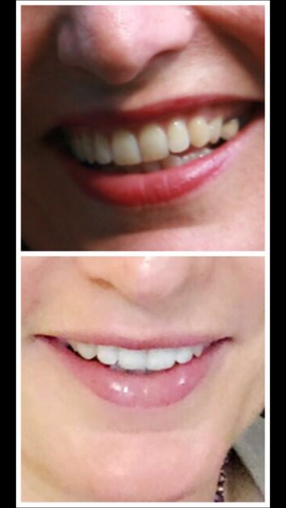 Results - Whitening Fluoride Toothpaste