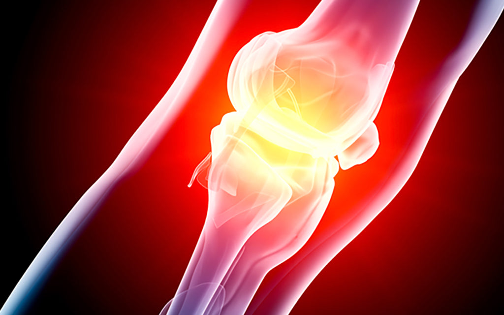 Arthritis foundation publishes first guidelines for patients who use CBD for pain relief