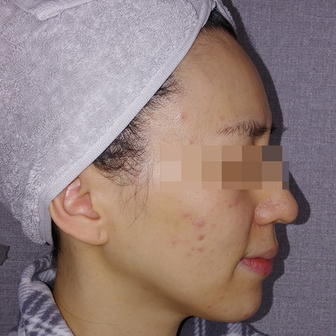 AC 7 Acne Serum Review Before and After 1-2