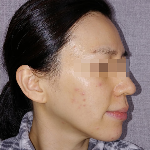 AC 7 Acne Serum Review Before and After 2-2