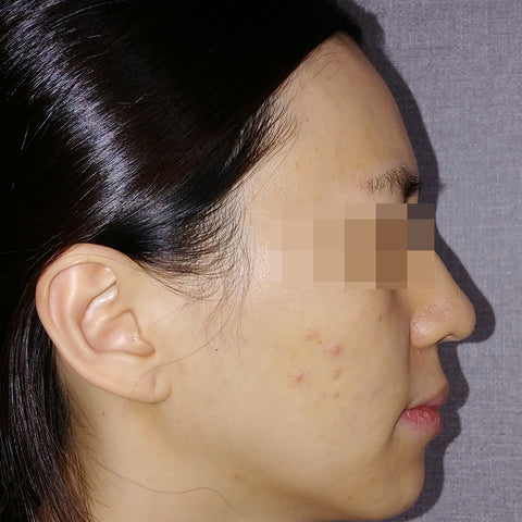 AC 7 Acne Serum Review Before and After 3-2