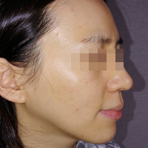 AC 7 Acne Serum Review Before and After 4-2