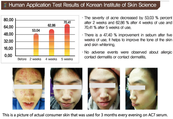 Acne Korean skin care
