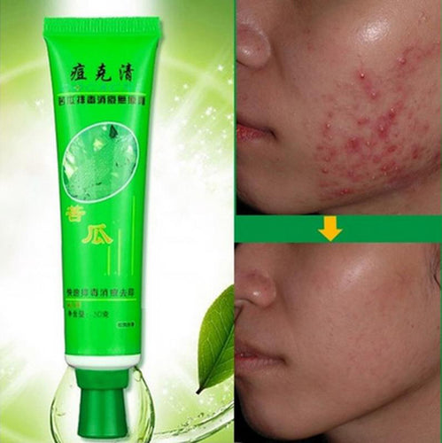 30g Face Skin Care Acne Cream Oil Control Acne Products Face Cream beauty