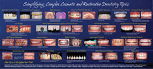 Load image into Gallery viewer, 2021 Simplifying Complex Cosmetic and Restorative Seminar (San Diego, CA) Nov. 5-6th, 2021 (DENTIST)