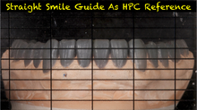 Load image into Gallery viewer, Straight Smile Guide (2 Included for dentist and laboratory)