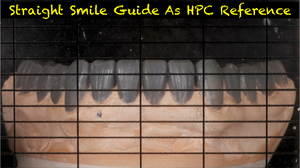 Straight Smile Guide (2 Included for dentist and laboratory)
