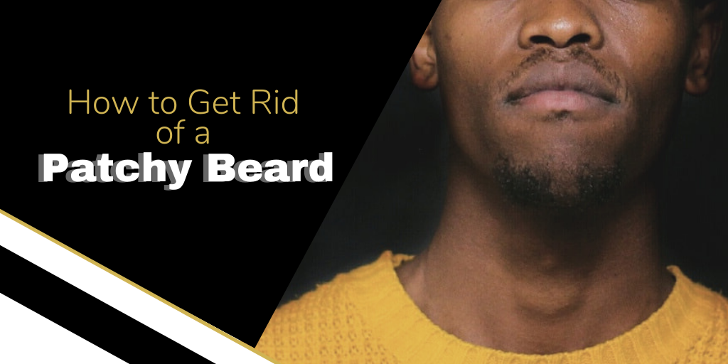 How To Get Rid Of A Patchy Beard