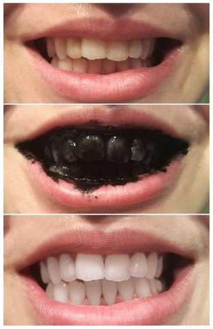 activated charcoal teeth whitening that works philippines