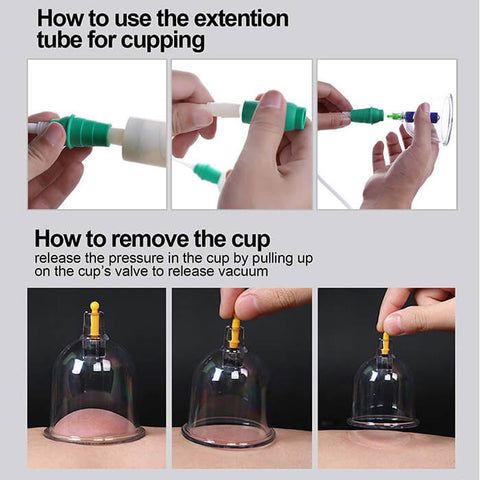 how to use cupping