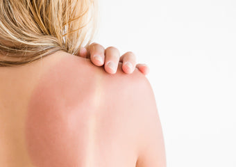 Top 5 tips to treat sunburned skin