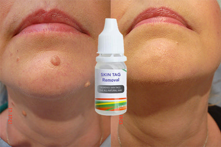 Skin Tag Remover Shop Plus Center