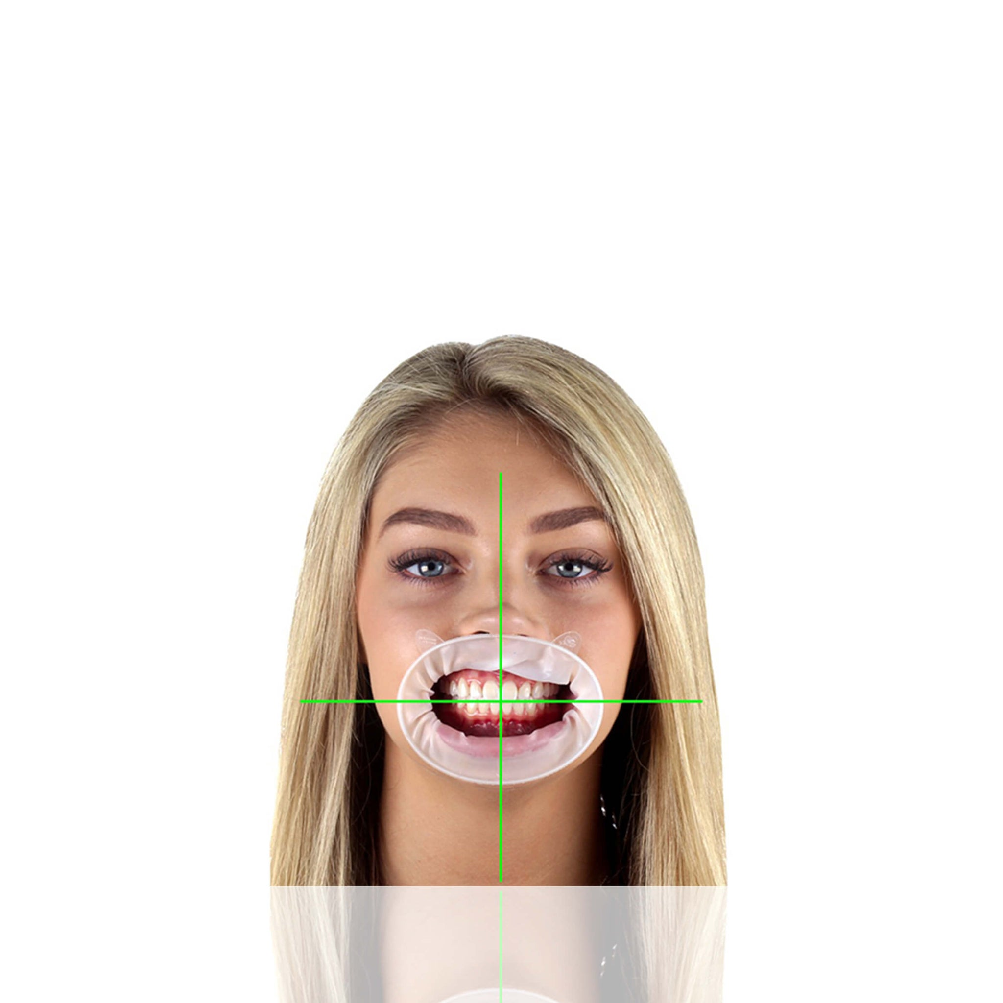 Capturing the midline and horizontal line angles is crucial communication for the laboratory when building a case regarding dental aesthetics.