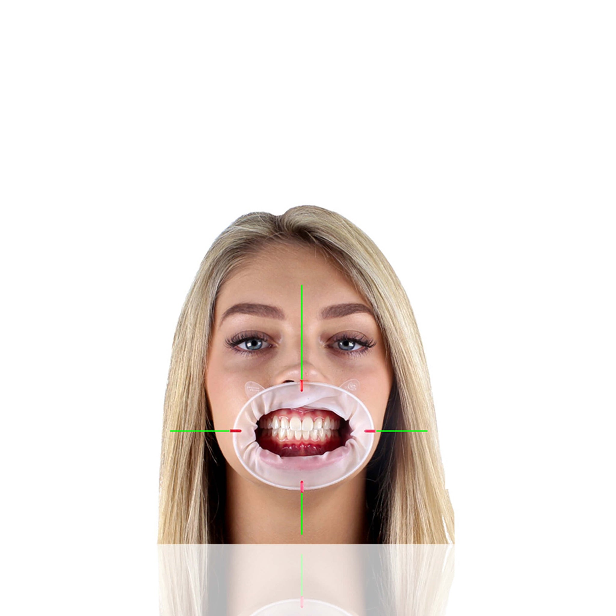 The OneBite System allows the doctor to take one accurate record. This is  compared to the 3 records usually taken with benda brushes or q-tips which results more remakes. Dental aesthetics is built into the foundation of OneBite.