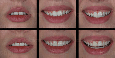 The correction of the midline and the linear axes of the teeth can be easily seen in the smile photos after the mock-up procedure.